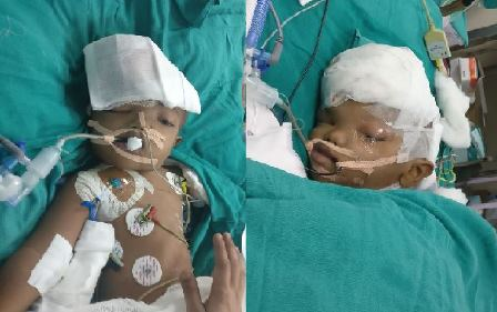 Conjoined twins separated at AIIMS stable